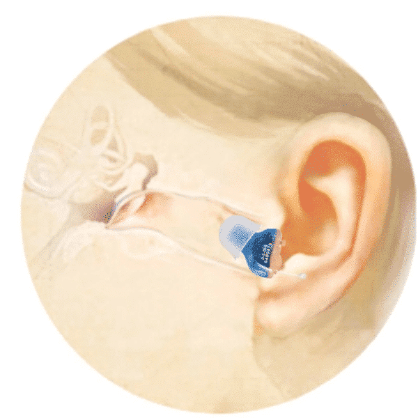 Wihear™️ Official Retailer – Invisible Hearing Aid