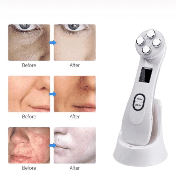 Luminous Beauty Face Lift™ – Official Retailer